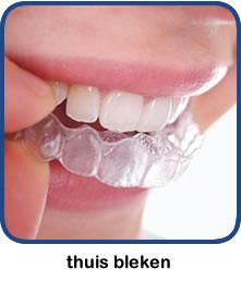 Thuis uw tanden bleken